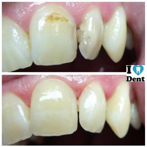 Inspiro 2 zuby